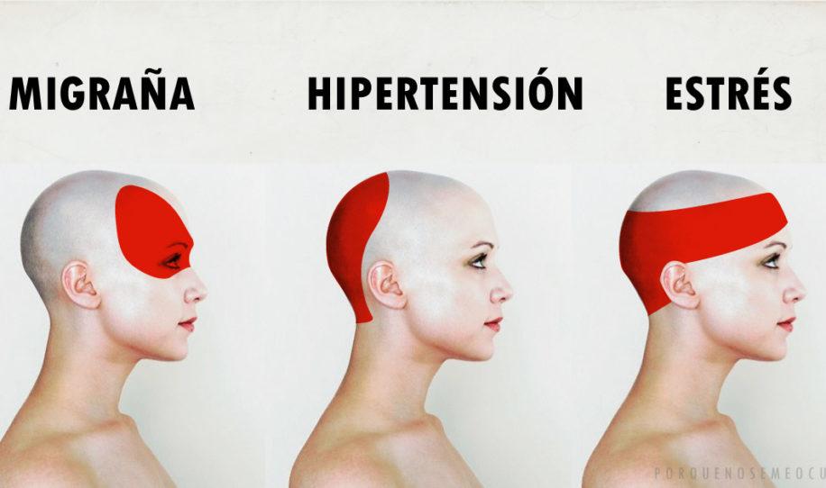 Como aliviar el dolor de cabeza en 5 minutos sin medicamentos ni pastillas!