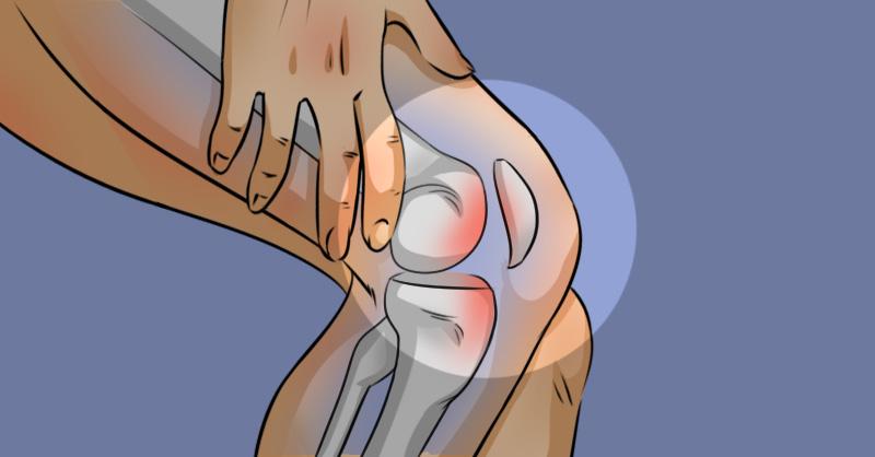 Guia Definitivo da Artrose: o que é, como identificar e tratamento