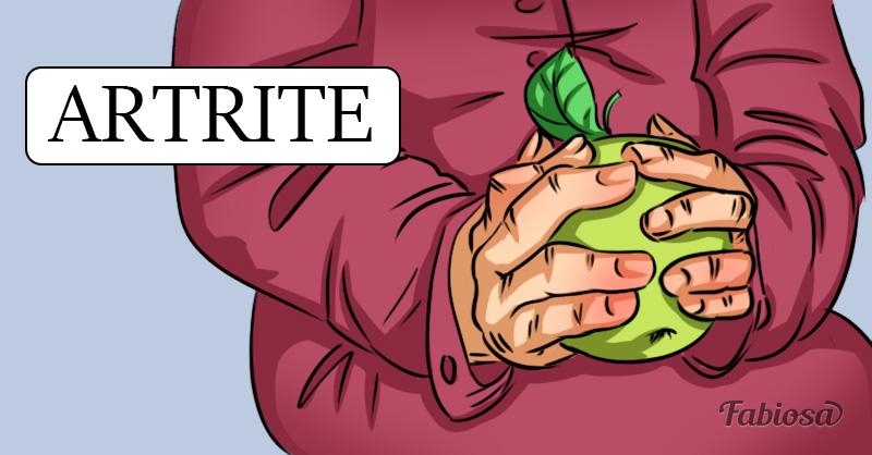 O guia definitivo da artrite: o que é, como identificar e como tratar