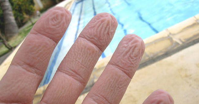 Impressionante! Os dedos enrugados têm mais importância na história do que imaginamos