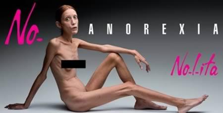 Las 10 historias sobre la anorexia que más conmocionaron a la opinión pública