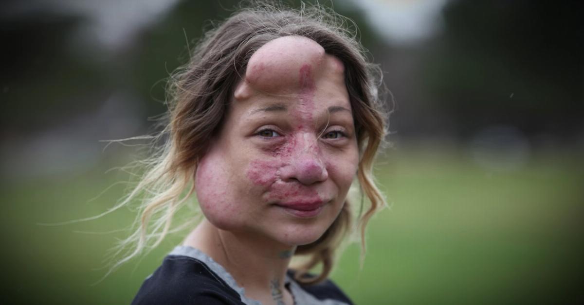Madre con malformación en la cara se somete a una difícil cirugía