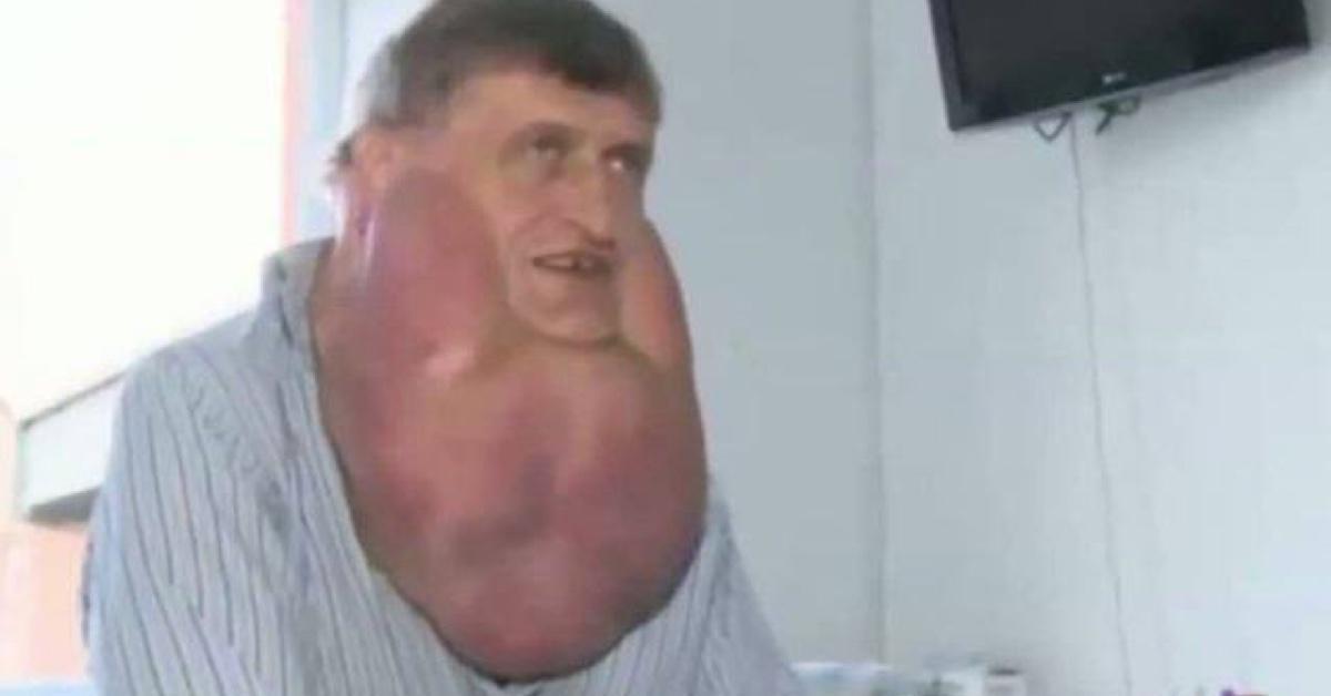 A un hombre le extraen un tumor de 5,8kg que lleva creciendo 10 años