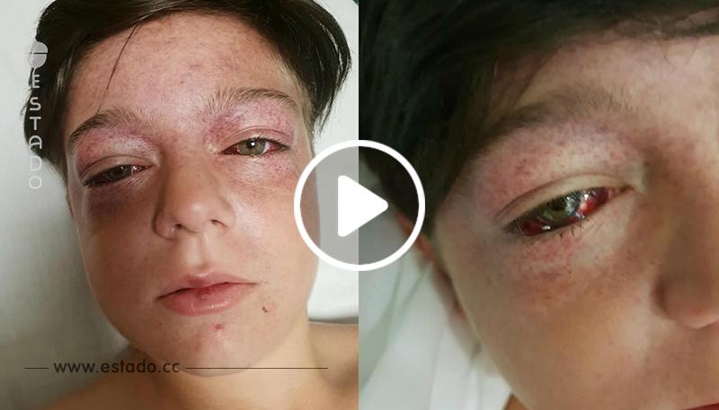 Peligroso reto viral de YouTube que parecía inocente casi mata a un niño de 11 años