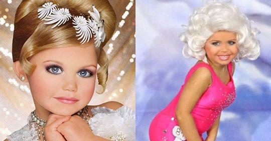 Maddy Verst, la modelo infantil de 5 años que usa implantes de pecho