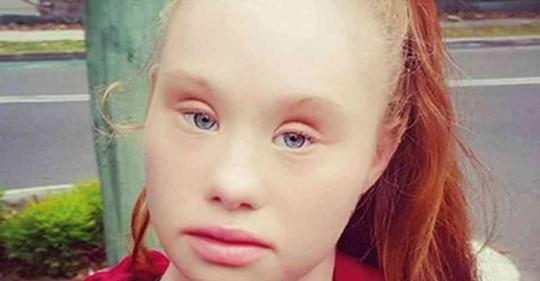 Hermosa modelo con síndrome de Down perdió 25 kg – Hoy muestra su espectacular figura