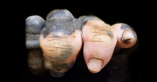La foto de la mano de un gorila con falta de pigmentación que nos hace ver lo parecidos que somos