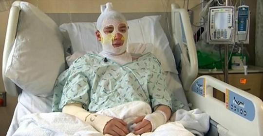 Sufrió quemaduras de tercer grado por salvar a su sobrina de 8 años de un terrible incendio