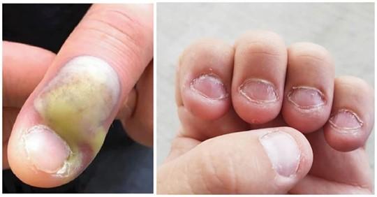 Advierte sobre el peligro de morderse las uñas tras una infección que casi lo deja sin vida.
