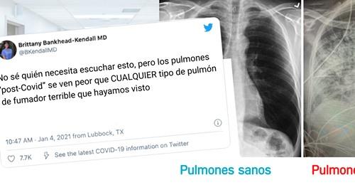 Una doctora muestra cómo quedan los pulmones tras padecer Coronavirus