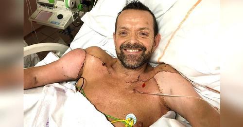 Es el primer hombre del mundo en recibir un trasplante de brazos – «Desperté 3 meses después»